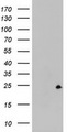 HEK293T cells were transfected with the pCMV6-ENTRY control (Left lane) or pCMV6-ENTRY ZFAND5 (Right lane) cDNA for 48 hrs and lysed. Equivalent amounts of cell lysates (5 ug per lane) were separated by SDS-PAGE and immunoblotted with anti-ZFAND5.