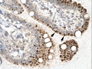 ZFP1 antibody LS-C29693 was used in IHC to stain formalin-fixed, paraffin-embedded human intestine.  This image was taken for the unconjugated form of this product. Other forms have not been tested.