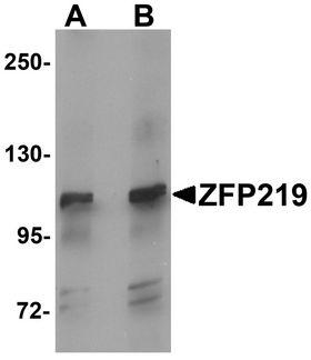 ZFP219 / ZNF219 Antibody - Western blot analysis of ZFP219 in mouse brain tissue lysate with ZFP219 antibody at (A) 1 and (B) 2 ug/ml.
