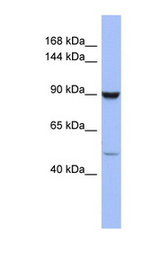 ZFP28 Antibody - ZFP28 antibody Western blot of COLO205 cell lysate. This image was taken for the unconjugated form of this product. Other forms have not been tested.