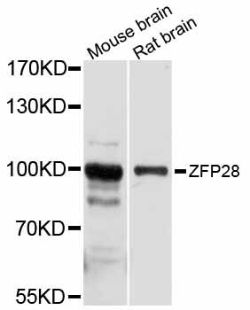 ZFP28 Antibody - Western blot analysis of extracts of various cell lines, using ZFP28 antibody at 1:1000 dilution. The secondary antibody used was an HRP Goat Anti-Rabbit IgG (H+L) at 1:10000 dilution. Lysates were loaded 25ug per lane and 3% nonfat dry milk in TBST was used for blocking. An ECL Kit was used for detection and the exposure time was 10s.