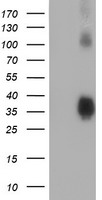 ZFP36 / Tristetraprolin Antibody - HEK293T cells were transfected with the pCMV6-ENTRY control (Left lane) or pCMV6-ENTRY ZFP36 (Right lane) cDNA for 48 hrs and lysed. Equivalent amounts of cell lysates (5 ug per lane) were separated by SDS-PAGE and immunoblotted with anti-ZFP36.