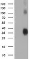 HEK293T cells were transfected with the pCMV6-ENTRY control (Left lane) or pCMV6-ENTRY ZFP36 (Right lane) cDNA for 48 hrs and lysed. Equivalent amounts of cell lysates (5 ug per lane) were separated by SDS-PAGE and immunoblotted with anti-ZFP36.