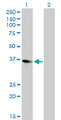 Western Blot analysis of ZFP36L1 expression in transfected 293T cell line by ZFP36L1 monoclonal antibody (M02), clone 1A3.Lane 1: ZFP36L1 transfected lysate(36.3 KDa).Lane 2: Non-transfected lysate.