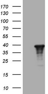 ZFP42 / REX-1 Antibody - HEK293T cells were transfected with the pCMV6-ENTRY control (Left lane) or pCMV6-ENTRY ZFP42 (Right lane) cDNA for 48 hrs and lysed. Equivalent amounts of cell lysates (5 ug per lane) were separated by SDS-PAGE and immunoblotted with anti-ZFP42.
