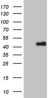 ZFP42 / REX-1 Antibody - HEK293T cells were transfected with the pCMV6-ENTRY control. (Left lane) or pCMV6-ENTRY ZFP42. (Right lane) cDNA for 48 hrs and lysed. Equivalent amounts of cell lysates. (5 ug per lane) were separated by SDS-PAGE and immunoblotted with anti-ZFP42. (1:2000)