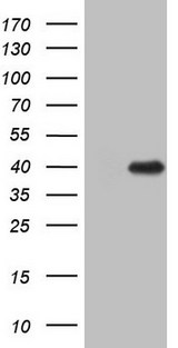 ZFP42 / REX-1 Antibody - HEK293T cells were transfected with the pCMV6-ENTRY control. (Left lane) or pCMV6-ENTRY ZFP42. (Right lane) cDNA for 48 hrs and lysed. Equivalent amounts of cell lysates. (5 ug per lane) were separated by SDS-PAGE and immunoblotted with anti-ZFP42.