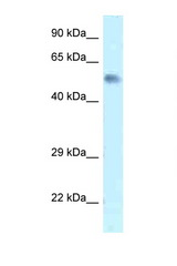 Zfp472 Antibody - Zfp472 antibody Western blot of Mouse Brain lysate. Antibody concentration 1 ug/ml.  This image was taken for the unconjugated form of this product. Other forms have not been tested.