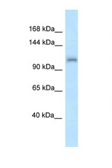 ZFR antibody Western blot of Mouse Liver lysate. Antibody concentration 1 ug/ml.  This image was taken for the unconjugated form of this product. Other forms have not been tested.