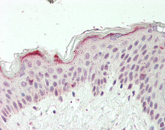 Human Skin: Formalin-Fixed, Paraffin-Embedded (FFPE).  This image was taken for the unconjugated form of this product. Other forms have not been tested.