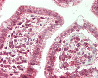 ZFX Antibody - Human Small Intestine: Formalin-Fixed, Paraffin-Embedded (FFPE).  This image was taken for the unconjugated form of this product. Other forms have not been tested.