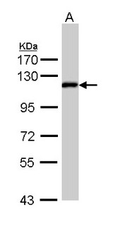 Sample (30 ug of whole cell lysate). A: Hep G2 . 7.5% SDS PAGE. ZHX2 antibody diluted at 1:1000.