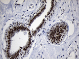 Immunohistochemical staining of paraffin-embedded Human breast tissue within the normal limits using anti-ZHX2 mouse monoclonal antibody. (Heat-induced epitope retrieval by 1mM EDTA in 10mM Tris buffer. (pH8.5) at 120°C for 3 min. (1:150)