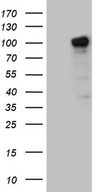 ZHX2 / RAF Antibody - HEK293T cells were transfected with the pCMV6-ENTRY control. (Left lane) or pCMV6-ENTRY ZHX2. (Right lane) cDNA for 48 hrs and lysed. Equivalent amounts of cell lysates. (5 ug per lane) were separated by SDS-PAGE and immunoblotted with anti-ZHX2. (1:2000)