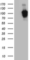 HEK293T cells were transfected with the pCMV6-ENTRY control. (Left lane) or pCMV6-ENTRY ZHX2. (Right lane) cDNA for 48 hrs and lysed. Equivalent amounts of cell lysates. (5 ug per lane) were separated by SDS-PAGE and immunoblotted with anti-ZHX2. (1:2000)