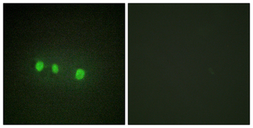 ZIC1+2+3+4+5 Antibody - Immunofluorescence analysis of HepG2 cells, using ZIC1/2/3/4/5 Antibody. The picture on the right is blocked with the synthesized peptide.