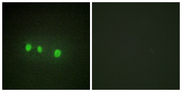 Immunofluorescence analysis of HepG2 cells, using ZIC1/2/3/4/5 Antibody. The picture on the right is blocked with the synthesized peptide.