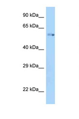 ZIK1 antibody Western blot of Mouse Kidney lysate. Antibody concentration 1 ug/ml.  This image was taken for the unconjugated form of this product. Other forms have not been tested.