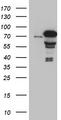 HEK293T cells were transfected with the pCMV6-ENTRY control. (Left lane) or pCMV6-ENTRY ZKSCAN1. (Right lane) cDNA for 48 hrs and lysed. Equivalent amounts of cell lysates. (5 ug per lane) were separated by SDS-PAGE and immunoblotted with anti-ZKSCAN1. (1:2000)