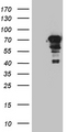 HEK293T cells were transfected with the pCMV6-ENTRY control. (Left lane) or pCMV6-ENTRY ZKSCAN1. (Right lane) cDNA for 48 hrs and lysed