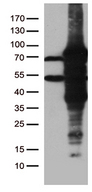 ZKSCAN1 / ZNF36 Antibody - HEK293T cells were transfected with the pCMV6-ENTRY control. (Left lane) or pCMV6-ENTRY ZKSCAN1. (Right lane) cDNA for 48 hrs and lysed. Equivalent amounts of cell lysates. (5 ug per lane) were separated by SDS-PAGE and immunoblotted with anti-ZKSCAN1. (1:2000)