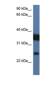 ZMAT2 Antibody - ZMAT2 antibody Western blot of Jurkat lysate. This image was taken for the unconjugated form of this product. Other forms have not been tested.