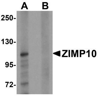 ZMIZ1 Antibody - Western blot analysis of ZIMP10 in K562 cell lysate with ZIMP10 antibody at 0.5 ug/ml in (A) the absence and (B) the presence of blocking peptide