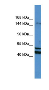 ZMYM3 antibody Western blot of Jurkat lysate. This image was taken for the unconjugated form of this product. Other forms have not been tested.