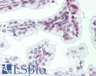 ZMYM6 Antibody - Human Prostate: Formalin-Fixed, Paraffin-Embedded (FFPE).  This image was taken for the unconjugated form of this product. Other forms have not been tested.