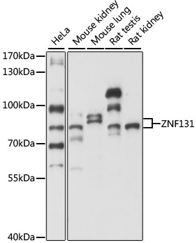 ZNF131 Antibody - Western blot analysis of extracts of various cell lines, using ZNF131 antibody at 1:1000 dilution. The secondary antibody used was an HRP Goat Anti-Rabbit IgG (H+L) at 1:10000 dilution. Lysates were loaded 25ug per lane and 3% nonfat dry milk in TBST was used for blocking. An ECL Kit was used for detection and the exposure time was 5s.