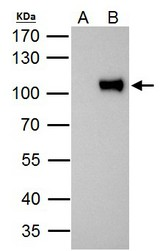 ZNF143 antibody immunoprecipitates ZNF143 protein in IP experiments. IP Sample:293T whole cell lysate/extract A. Control with 2 ug of preimmune rabbit IgG B. Immunoprecipitation of ZNF143 protein by 2 ug of ZNF143 antibody (GTX119360) 7.5% SDS-PAGE The immunoprecipitated ZNF143 protein was detected by ZNF143 antibody (GTX119360) diluted at 1:1000. EasyBlot anti-rabbit IgG (anti-rabbit IgG (HRP) -01) was used as a secondary reagent.