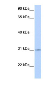 ZNF146 antibody LS-C101655 Western blot of Fetal Heart lysate.  This image was taken for the unconjugated form of this product. Other forms have not been tested.