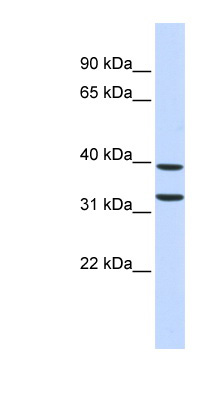 ZNF177 antibody LS-C110262 Western blot of Fetal Pancreas lysate.  This image was taken for the unconjugated form of this product. Other forms have not been tested.