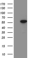 ZNF19 Antibody - HEK293T cells were transfected with the pCMV6-ENTRY control. (Left lane) or pCMV6-ENTRY ZNF19. (Right lane) cDNA for 48 hrs and lysed. Equivalent amounts of cell lysates. (5 ug per lane) were separated by SDS-PAGE and immunoblotted with anti-ZNF19. (1:2000)