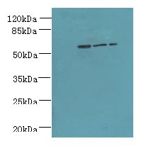 ZNF19 Antibody - Western blot. All lanes: ZNF19 antibody at 4 ug/ml. Lane 1: Mouse liver tissue. Lane 2: MDA-MB-231 whole cell lysate. Lane 3: HepG-2 whole cell lysate. Secondary Goat polyclonal to Rabbit IgG at 1:10000 dilution. Predicted band size: 52 kDa. Observed band size: 52 kDa.