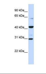 ZNF193 Antibody - Fetal brain lysate. Antibody concentration: 1.0 ug/ml. Gel concentration: 12%.  This image was taken for the unconjugated form of this product. Other forms have not been tested.