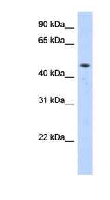 ZNF213 antibody LS-C101695 Western blot of Transfected 293T cell lysate.  This image was taken for the unconjugated form of this product. Other forms have not been tested.