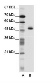 ZNF213 Antibody - A: Marker, B: HepG2 Cell Lysate.  This image was taken for the unconjugated form of this product. Other forms have not been tested.