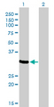 Western Blot analysis of ZNF215 expression in transfected 293T cell line by ZNF215 monoclonal antibody (M01), clone 2C11.Lane 1: ZNF215 transfected lysate(35.3 KDa).Lane 2: Non-transfected lysate.