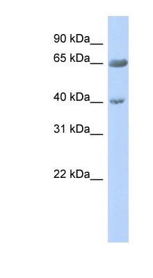 ZNF226 antibody LS-C101569 Western blot of Fetal Pancreas lysate.  This image was taken for the unconjugated form of this product. Other forms have not been tested.