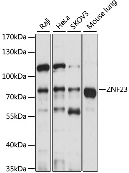 ZNF23 Antibody - Western blot analysis of extracts of various cell lines, using ZNF23 antibody at 1:1000 dilution. The secondary antibody used was an HRP Goat Anti-Rabbit IgG (H+L) at 1:10000 dilution. Lysates were loaded 25ug per lane and 3% nonfat dry milk in TBST was used for blocking. An ECL Kit was used for detection and the exposure time was 10s.