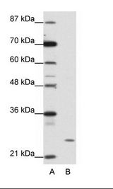 ZNF253 Antibody - A: Marker, B: HepG2 Cell Lysate.  This image was taken for the unconjugated form of this product. Other forms have not been tested.