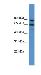 ZNF257 antibody Western blot of NCI-H226 cell lysate. This image was taken for the unconjugated form of this product. Other forms have not been tested.