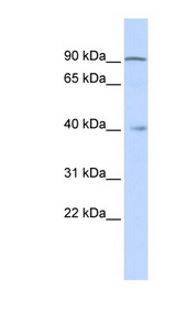ZNF263 antibody Western blot of Fetal liver lysate. This image was taken for the unconjugated form of this product. Other forms have not been tested.