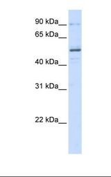 ZNF275 Antibody - 293T cell lysate. Antibody concentration: 1.0 ug/ml. Gel concentration: 12%.  This image was taken for the unconjugated form of this product. Other forms have not been tested.