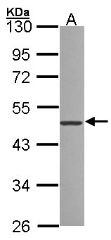 ZNF277 Antibody - Sample (30 ug of whole cell lysate). A:293T. 10% SDS PAGE. ZNF277 antibody diluted at 1:1000.