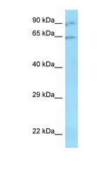 ZNF280B / SUHW2 antibody Western blot of ACHN Cell lysate. Antibody concentration 1 ug/ml.  This image was taken for the unconjugated form of this product. Other forms have not been tested.