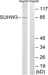 Western blot analysis of lysates from HepG2 cells, using ZNF280C Antibody. The lane on the right is blocked with the synthesized peptide.