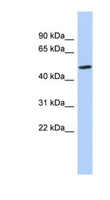 ZNF329 antibody LS-C110108 Western blot of MCF7 cell lysate.  This image was taken for the unconjugated form of this product. Other forms have not been tested.