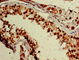 Immunohistochemistry image of paraffin-embedded human testis tissue at a dilution of 1:100